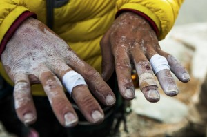 Kevin Jorgeson shows his hands after he and Tommy Caldwell completed their historic free-climb ascent of El Capitan's Dawn Wall, in Yosemite National Park, Calif.