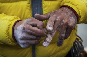 Kevin Jorgeson removes tape from his battered hands after he and Tommy Caldwell completed their free-climb ascent of El Capitan's Dawn Wall, in Yosemite National Park, Calif.